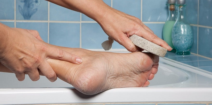 The Easiest Way To Prevent Calluses And Corns