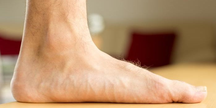 What Are The Best Insoles For Flat Feet?