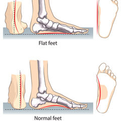 Arch supports for flat feet and fallen arches