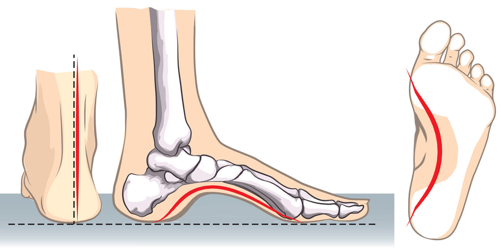 33f0836155 High Arch Feet Problems: How to Relieve Pain in Arch of Foot - Tread ...