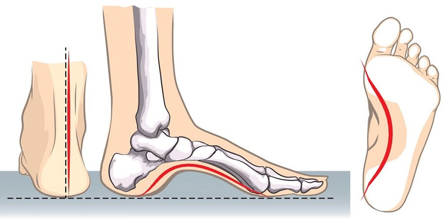 How to Relieve Foot Arch Pain