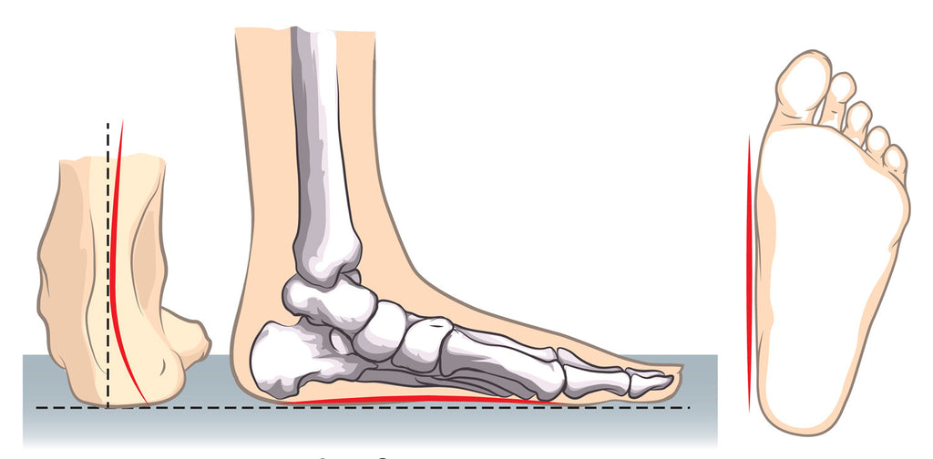 Best Insoles For Flat Feet - Find The