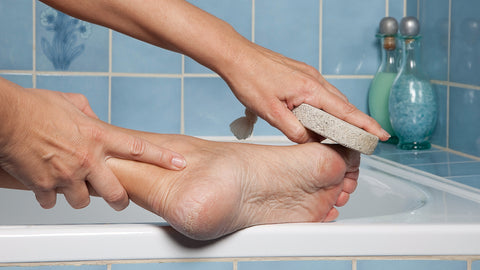 Women's foot issues - corns and calluses