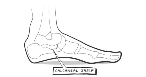 Overpronation insoles support the calcaneal shelf