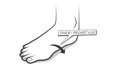 Overpronation insoles prevent faulty biomechanics