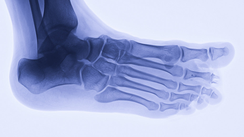 Stress fracture in feet