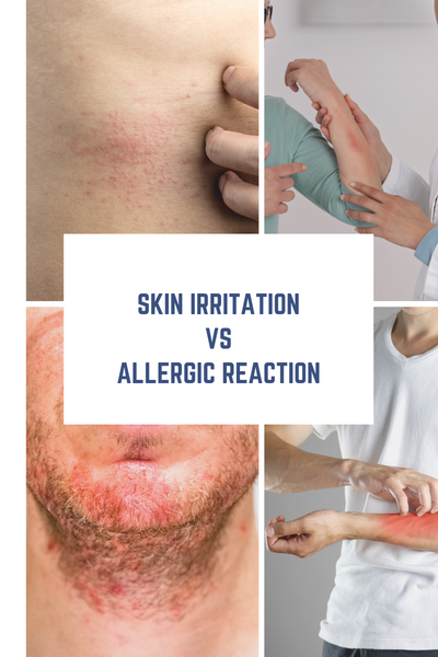 Skin Irritation vs. Allergic Reaction