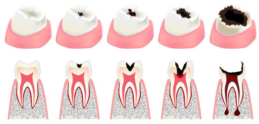 tooth decay | cavities | caries
