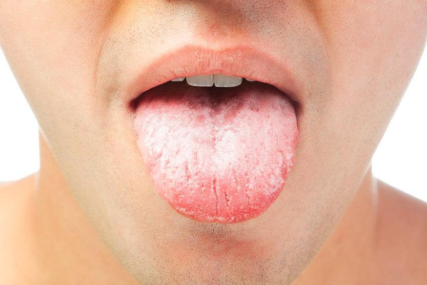 xerostomia dry mouth