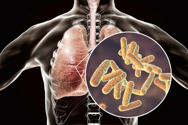 Pneumonia Definition: What Is Pneumonia? | Pneumonia Definition | Types, Symptoms, Treatment, and Risk Factor | how is pneumonia transmitted