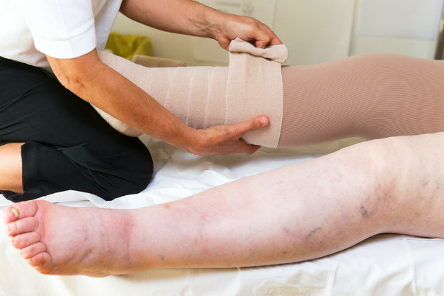What is Lymphedema? | Treatment for Lymphedema | Lymphedema Symptoms