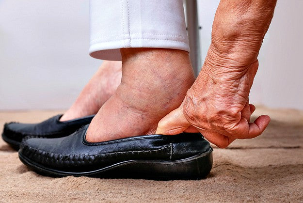 Lymphedema Treatment! By Dr. Stephen Smith | Essential Lymphedema Treatment Guide
