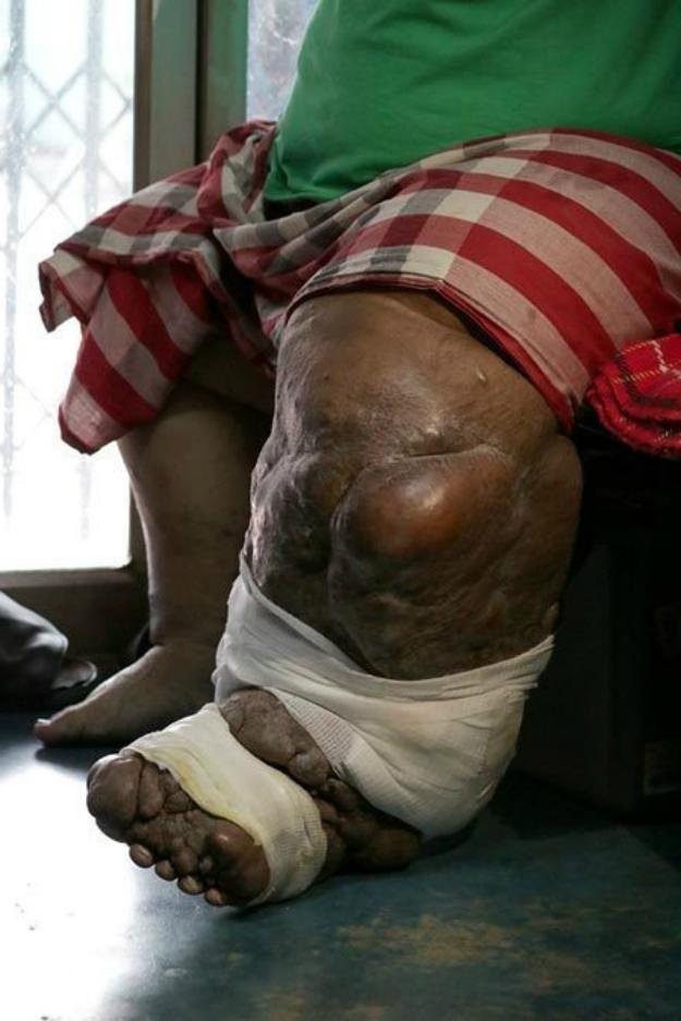 Stage 3 (Severe Stage or Lymphostatic Elephantiasis Stage) | What Are The Stages Of Lymphedema | Stage 2 Lymphedema Treatment