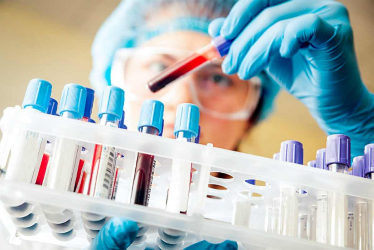 Blood sample for Thyroid tests | How To Tell If You Have Hypothyroid