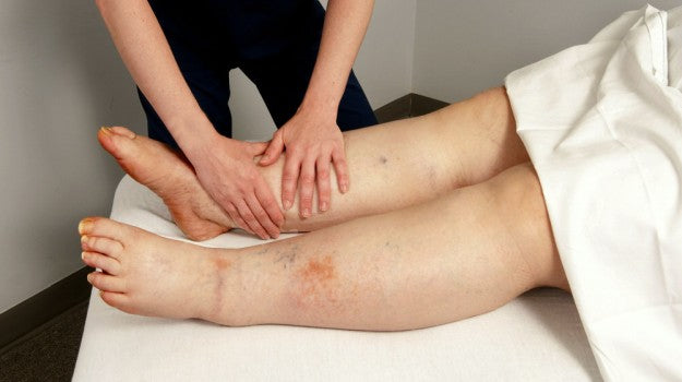 What is Lymphedema and What to Do With It | Essential Lymphedema Treatment Guide