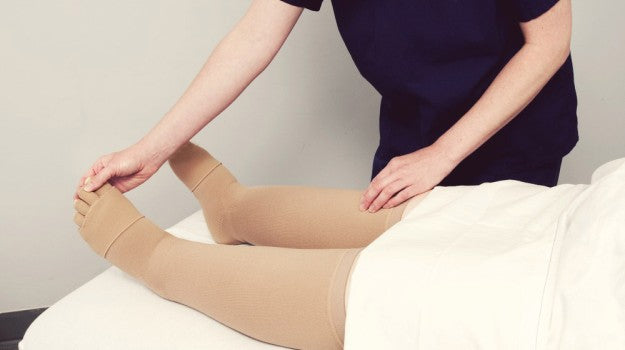 Quickly And Naturally Cure Lymphedema | Essential Lymphedema Treatment Guide