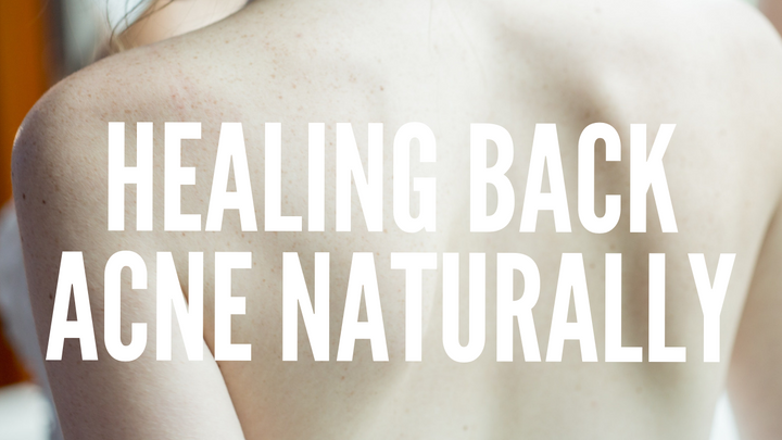 How To Heal Back Acne Naturally