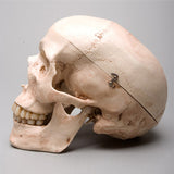 """Harvey"" Skull, 2nd Class, Aged Version"