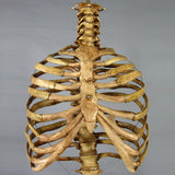 """Harvey"" Skeleton Rib Cage & Spine, Life Size, 2nd Class, Aged Version"