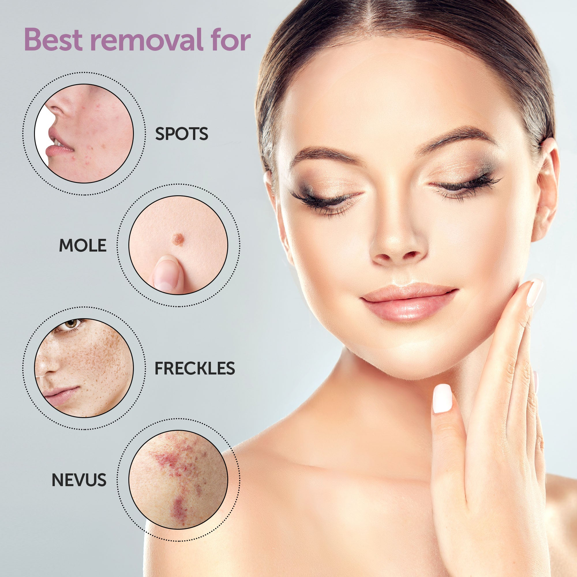 mole and skin tag remover