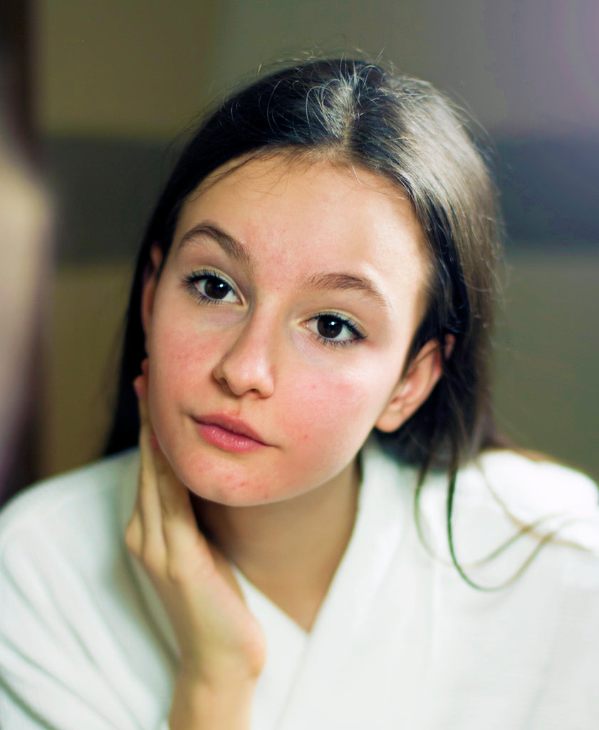 Is Rosacea Affecting Your Kid's Skin Health?