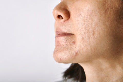 Woman with acne.