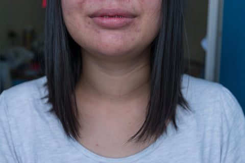 Teen with acne on her chin