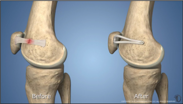 MPFL Reconstruction Surgery Before & After