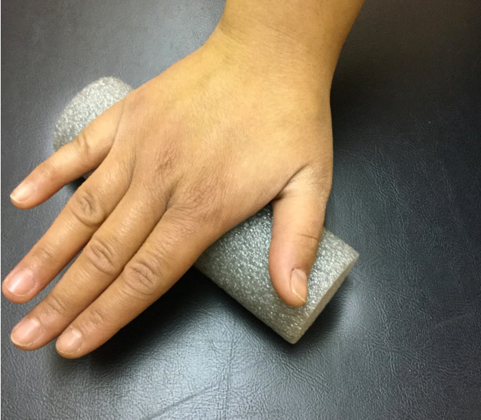 Understanding Dupuytren's Contracture and Its Treatment ...