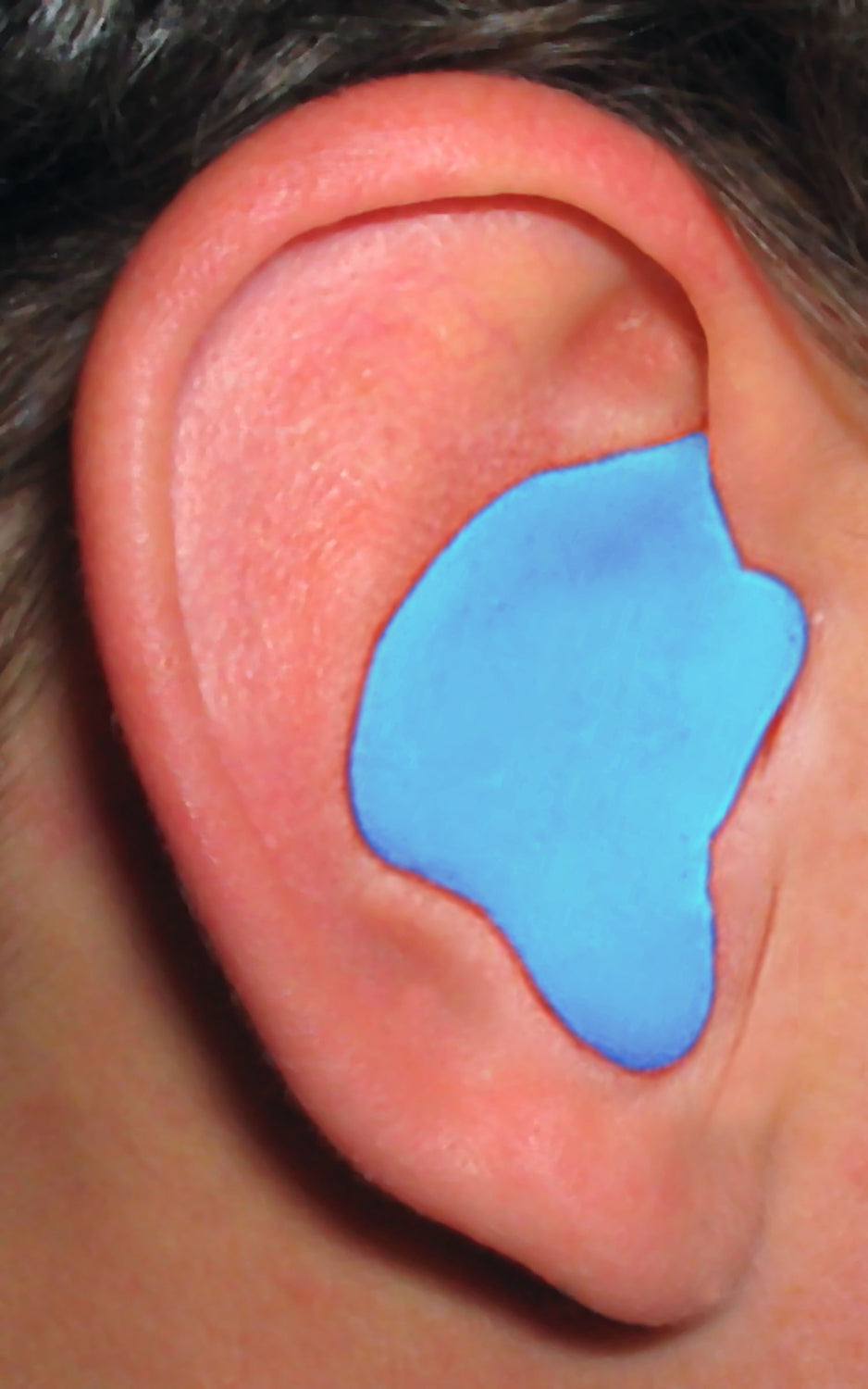 Radians CEP001-B Custom Molded Earplugs, Blue