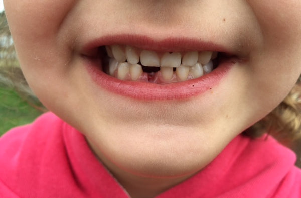 Image of a child's mouth with a front tooth missing