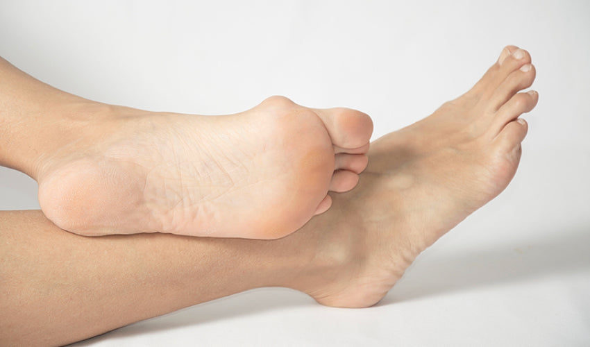 The sole of a foot that is showing a prominent bunion deformity