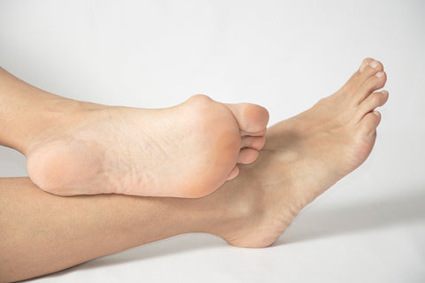 Are bunions hereditary?