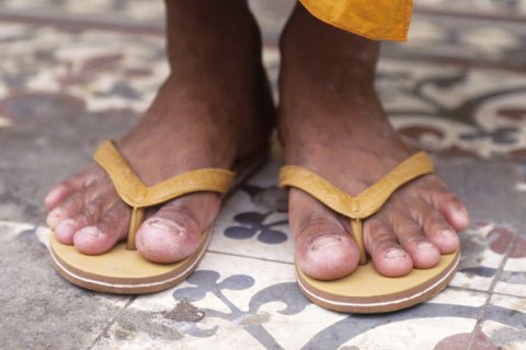Are flip-flops bad for your feet?