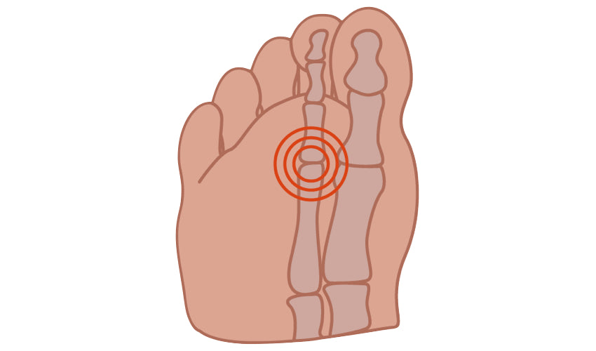 Cartoon image depicting the foot condition called capsulitis