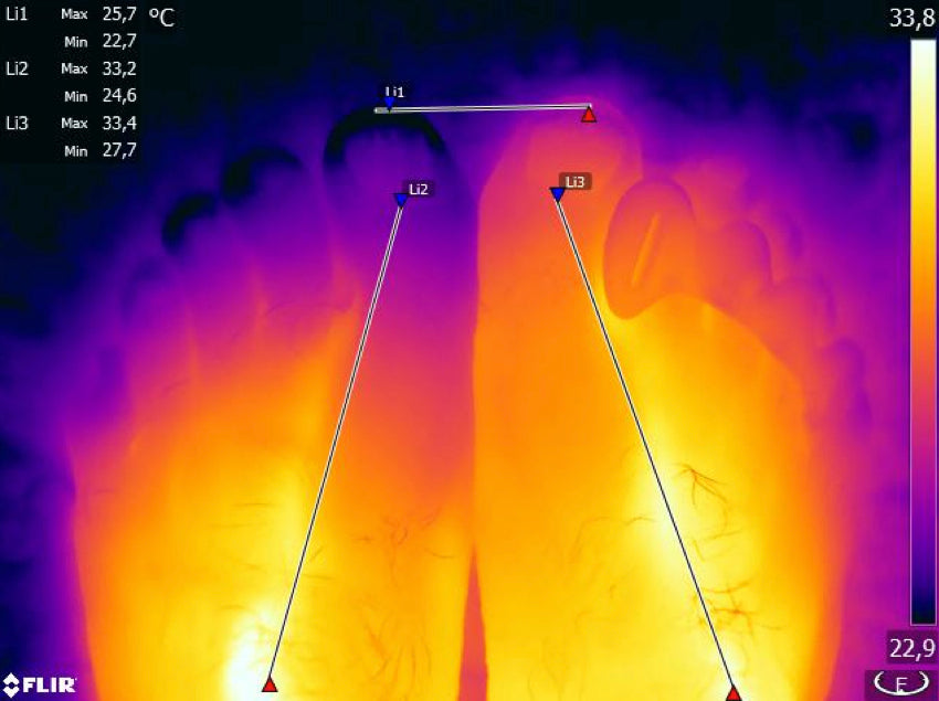Another infrared image showing the effect of Correct Toes toe spacers on foot and toe circulation