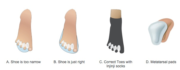 Pretty Toes Manual Guide