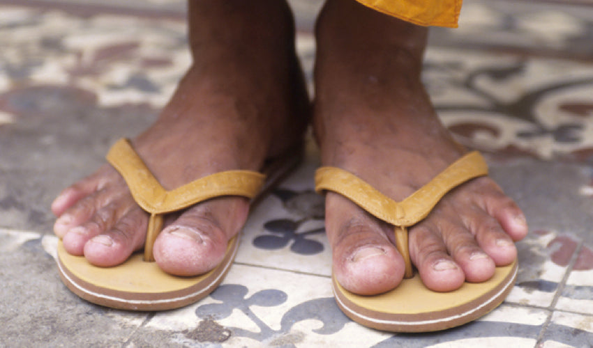 Are Flip-Flops Bad for Your Feet