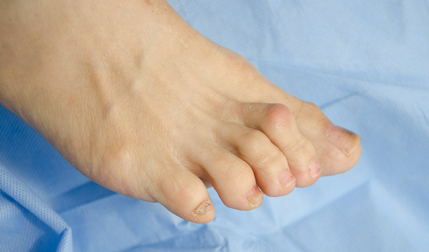A close up shot of a bare foot showing multiple hammertoes