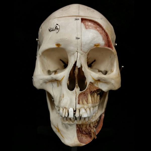 Human Skull, Clay Adams Anatomical