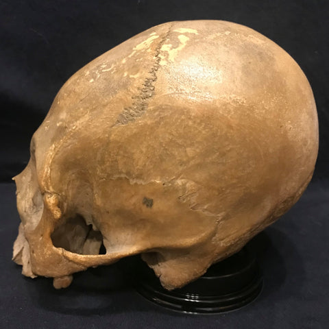 Peruvian Elongated Skull (SALE)