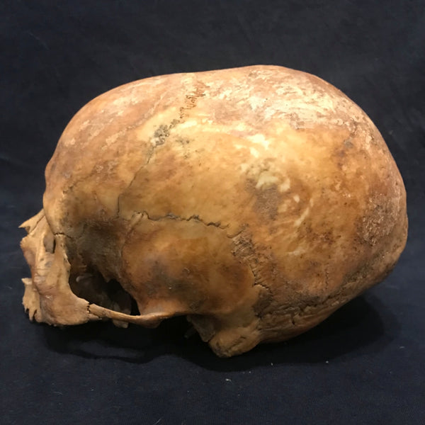 Toulouse Elongated Skull, Medieval