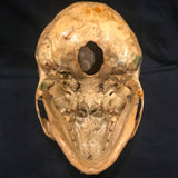 Elongated Skull, Dolichocephaly