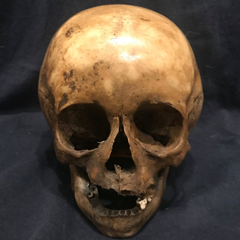 Human Child Skull, Hydrocephalic
