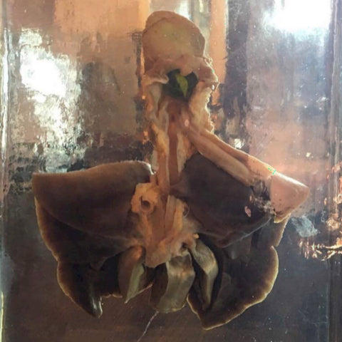 Choked To Death, Wet Specimen (SALE)