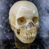 Human Skull, X-RAY Phantom