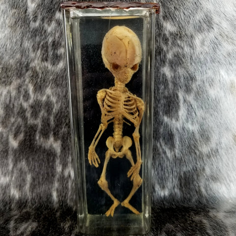 Fetal Human Skeleton, Wet Specimen (SALE)