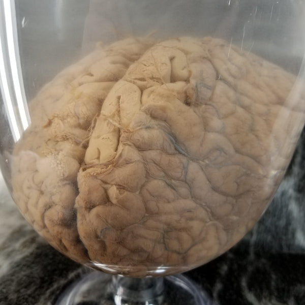 Human Brain, Wet Specimen