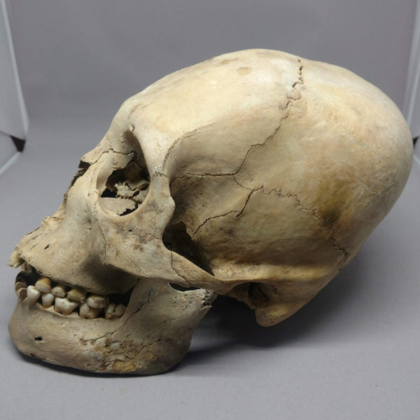 Peruvian Elongated Skull, With Jaw