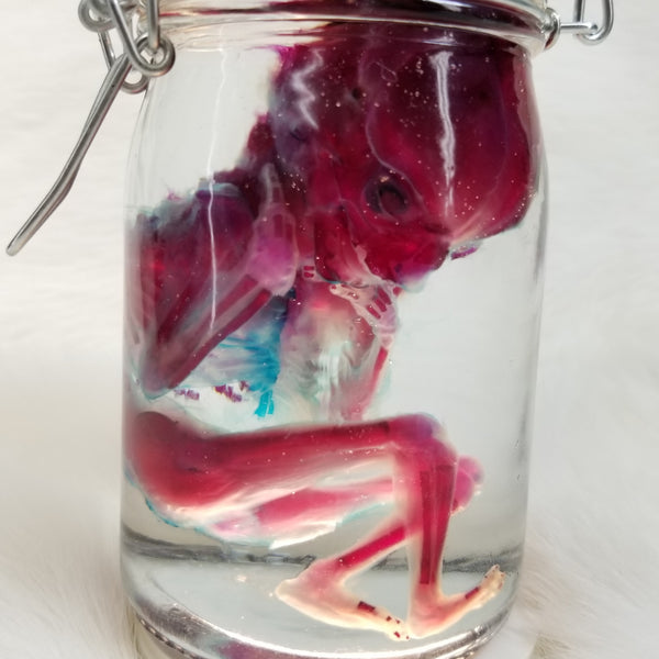 Male Human Fetus, Diaphonized